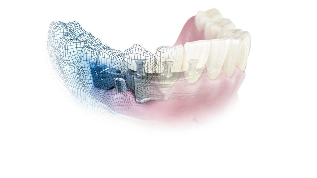 Gebiss mit einer Zahnimplantat-Suprastruktur