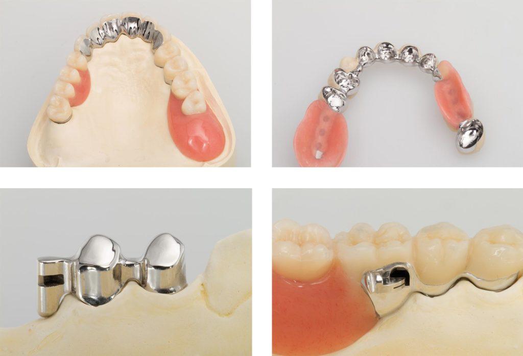 Vier Bilder mit verschiedenen Bestandteilen eines kombinierten Zahnersatzes aus dem Dentallabor