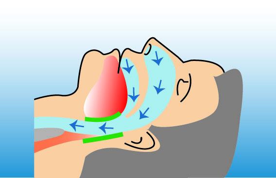 Illustration eines Menschen mit normaler Atmungsfunktion