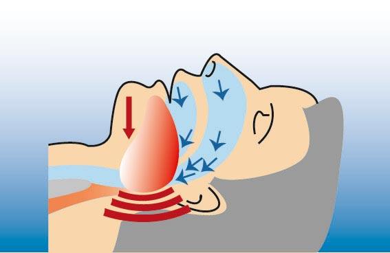 Illustration eines Menschen mit einer Schlafapnoe