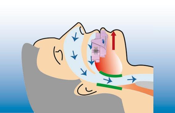 Illustration eines Menschen mit einer Schnarcherschiene